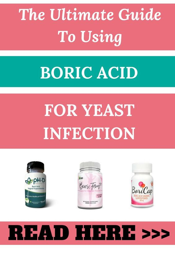 using boric acid for yeast infection